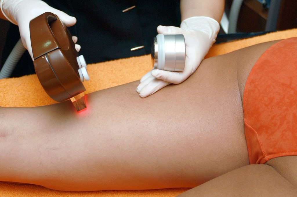The Places Where You Can (& Can't) Get Laser Hair Removal