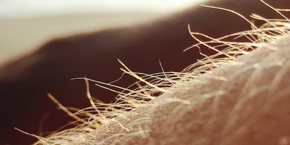 hair removal toronto